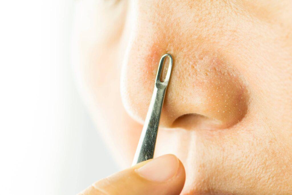 Best Giant Blackhead Removal Treatments