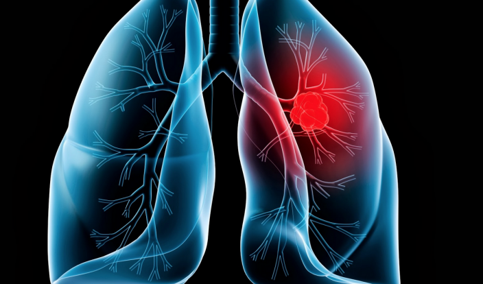 Lung Cancer Different Therapy Choices and What Are the Types